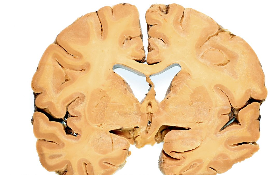 Ludzki mózg w cyfrowym świecie